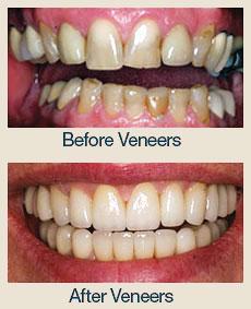 Cosmetic Dentistry - Santa Maria