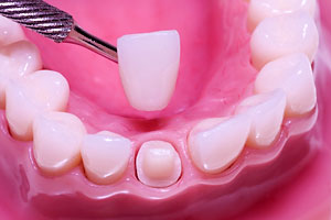 Dental Restoration - Santa Maria