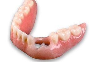 Dental Restoration - Santa Maria