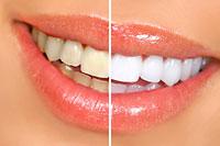 Dental Services - Santa Maria